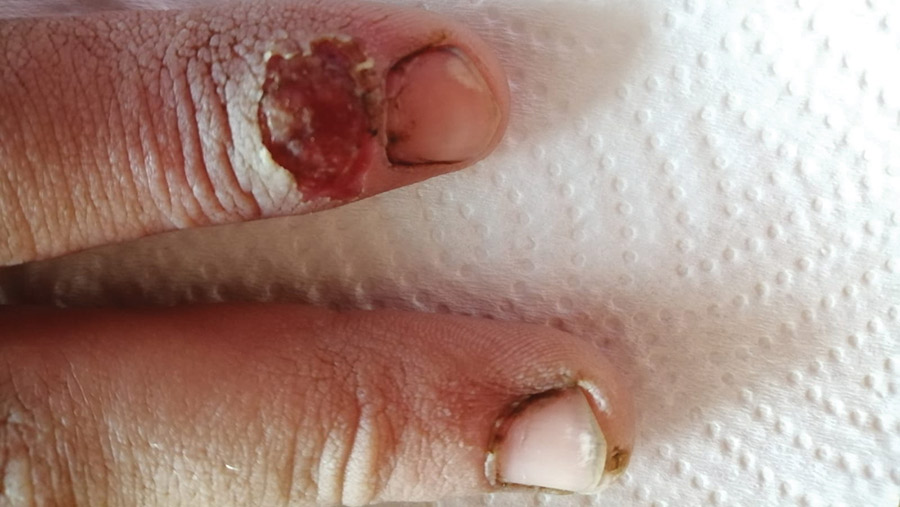 Fingers showing infection