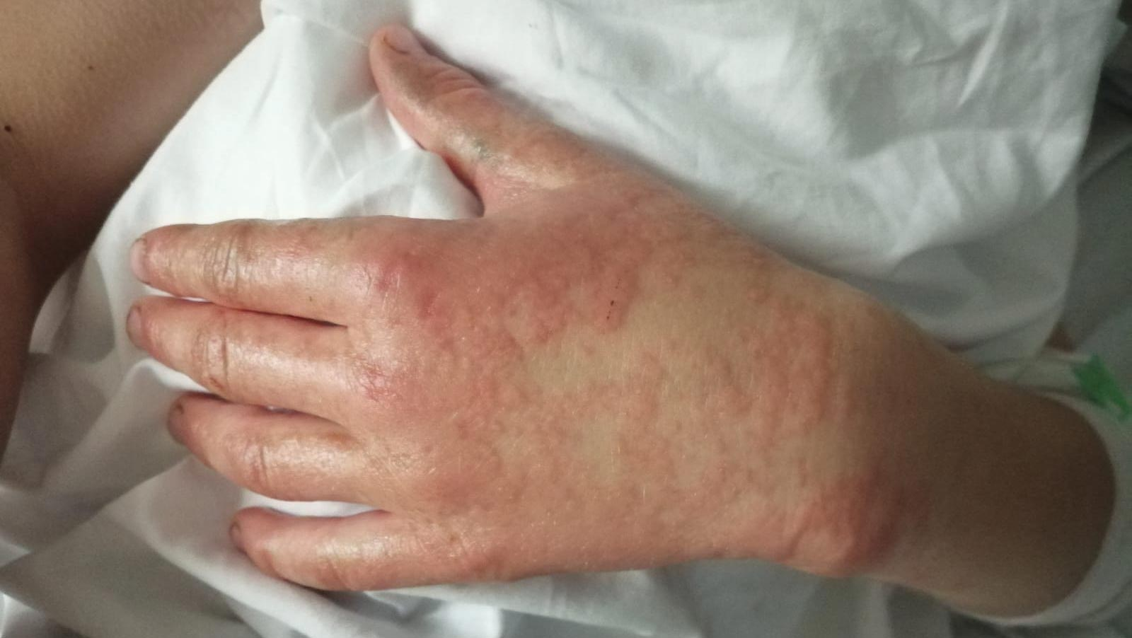 Hand on pillow showing infection