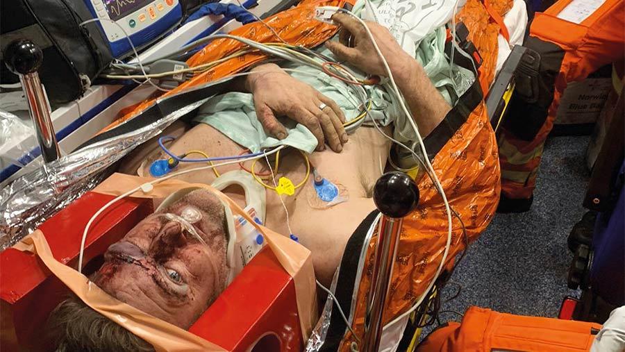 Tim Kitsons injuries