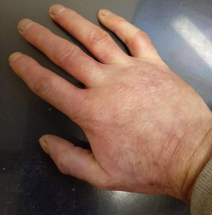 Healed hand