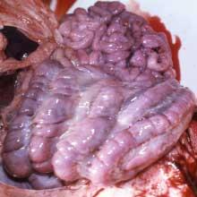 oedema-in-mesentery